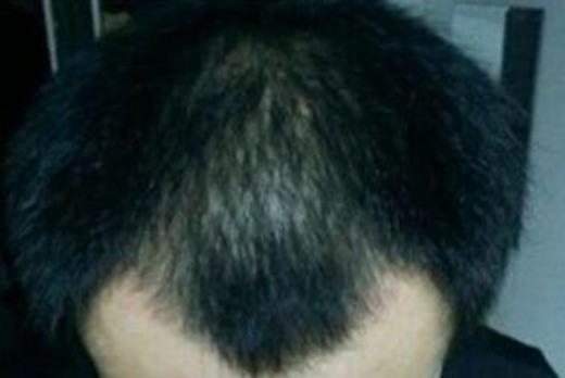 头发稀少的八字特征